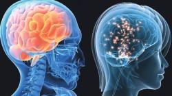 Erkek beyni ve kadın beyni arasındaki farklar 7