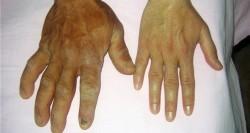 Akromegali (Kontrolsüz büyüme hastalığı) nedir? 2