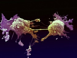 Kanser riskini düşüren 10 basit önlem 5