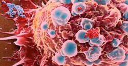 Kanserden korunmanın 10 kuralı 5