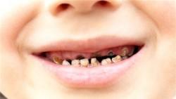 Çocuklarda diş çürüklerini önlemenin yolları 6