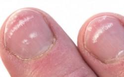 Tırnaklardaki hastalık habercisi olan 7 işaret 3