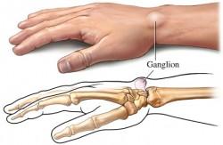 Ganglion nedir, nasıl tedavi edilir? 4