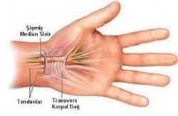 Parmak uyuşması neyin belirtisi? 3