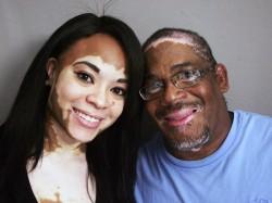 Vitiligo beyazlama hastalığı, sebepleri ve tedavisi 3