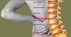 Disk kayması nedir, belirtileri ve tedavisi 7