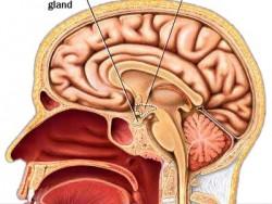 hipofiz bezi tümörü