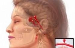 Kulaktan kan gelmesi nedenleri ve tedavisi 5