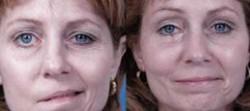 Yüz uyuşması nedenleri nelerdir? 5