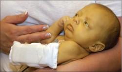 Bebeklerde sarılık nedenleri belirtileri ve tedavisi 2