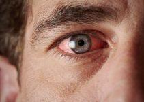 Göz kanlanması nedir, nasıl geçer? 5