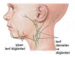 Lenfoma (Lenf kanseri) belirtileri nelerdir 1