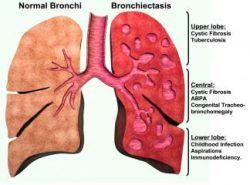 Bronşektazi nedir belirtileri tanı ve tedavisi 1