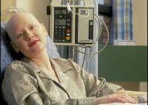 Kemoterapi Nedir, Nasıl Uygulanır ve Etkileri nelerdir? 2