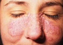 Lupus Hastalığı Nedir Lupus Hastalığının Belirtileri ve Nedenleri 2