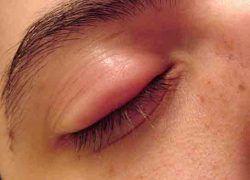 Göz kapağı şişmesine sebep olan olası hastalıklar 1