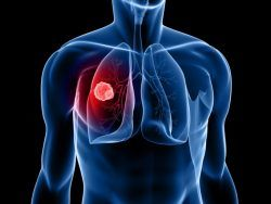 Akciğer Kanseri Belirtileri, Tedavisi Var mı Yaşam süresi ne kadar? 1