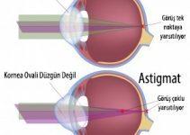 Astigmat Göz Hastalığı nedir? Nasıl tedavi edilir? 2