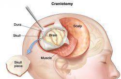 Beyin tümörü belirtileri ve tedavisi 1