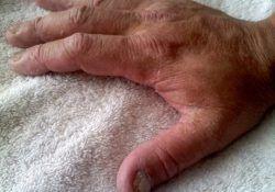 El mantarı neden olur belirtileri nelerdir tedavisi nasıl yapılır? 1
