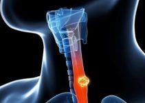 Yemek borusu kanseri belirtileri ve tedavisi 2
