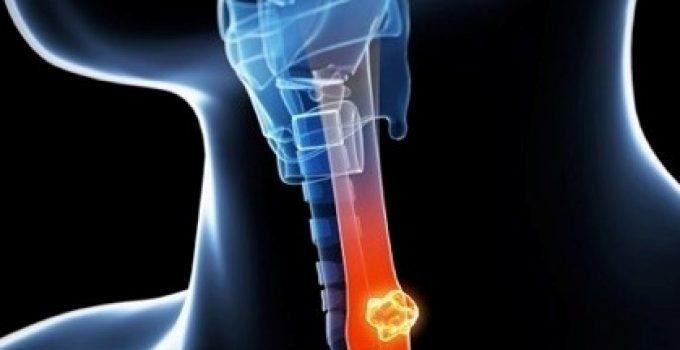 Yemek borusu kanseri belirtileri ve tedavisi 1