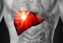 Karaciğer kanseri neden olur belirtileri ve tedavisi 1
