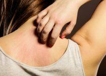 Sırt kaşıntısı neden olur, tedavisi nasıl yapılır? 3