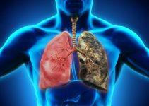 Kronik bronşit nedir? Bronşit nedenleri ve Tedavisi 5