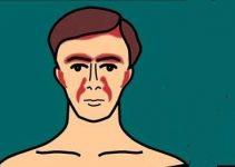 Seboreik dermatit nedir belirtileri ve tedavisi 5