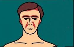 Seboreik dermatit nedir belirtileri ve tedavisi 1