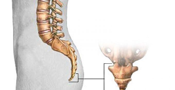 Kuyruk sokumunda ağrı neden olur? Nasıl geçer? 3